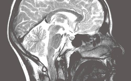 MRT-Scan eines Kopf mit dem 3-Tesla MRT